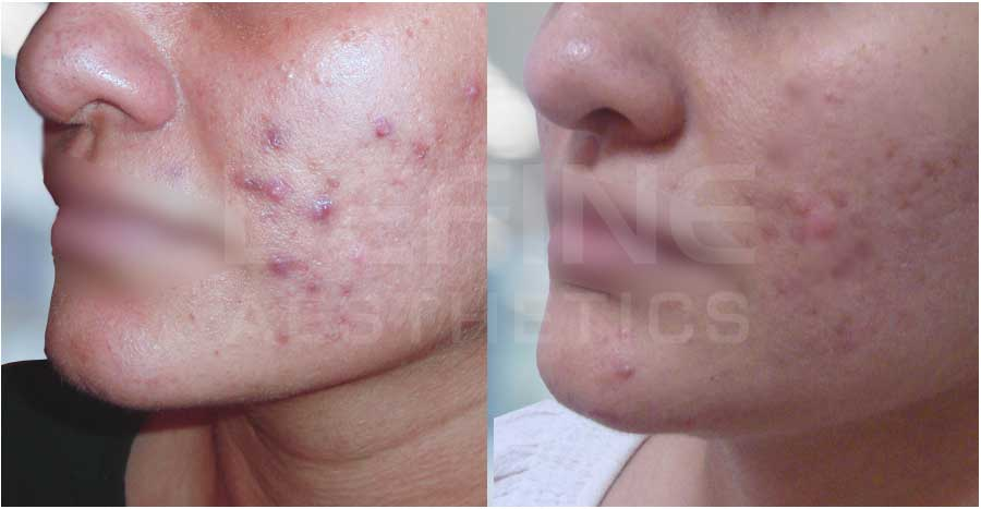 Acne & Acne Scar – Before / After