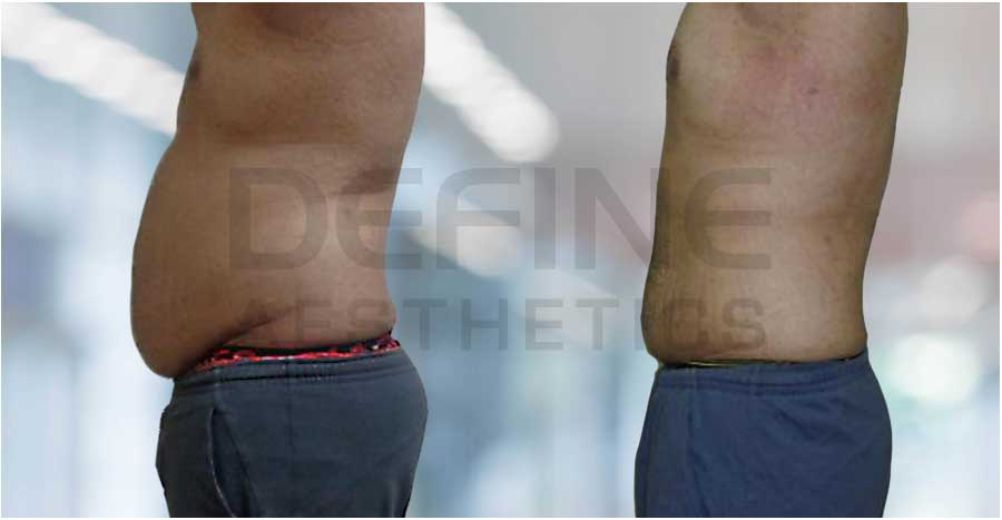 Belly Fat Before & After