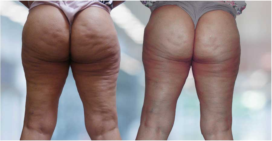 Cellulite – Before / After