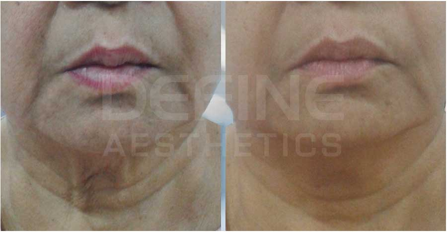 Face Lift Non-Surgical – Before / After